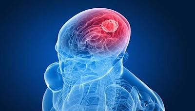 diartikan sebagai kanker yang dimulai di otak PENYEBAB, GEJALA DAN PENGOBATAN KANKER OTAK
