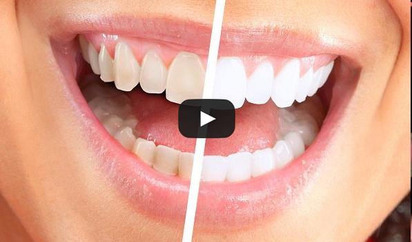 Should i brush my teeth before whitening strips