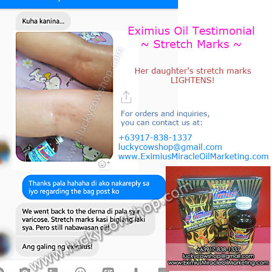 eximius oil testimonial stretch marks