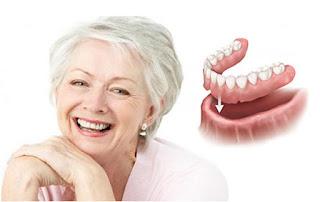 اسعار تركيب الاسنان المتحركة