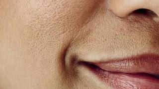TIPS MENYEMBUNYIKAN PORI-PORI WAJAH 7 Cara Menyamarkan Pori-pori Besar