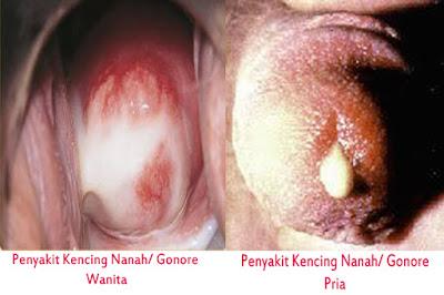 Gejala Penyakit Kencing Nanah Dan Efek Samping Yang Dirasakan