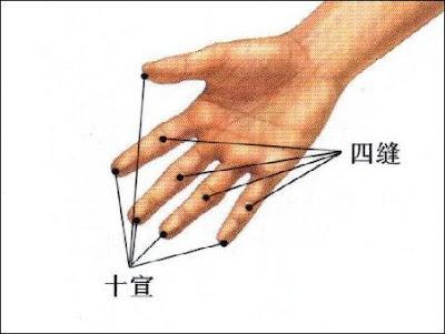 十宣穴位 | 十宣穴痛位置 - 穴道按摩經絡圖解 | Source:zhongyibaike.com