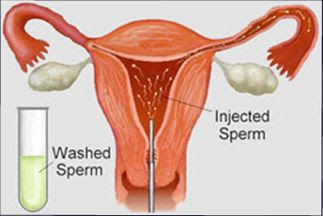 https://www.fertility-clinic.in/artificial-insemination-ovarian-stimulation-and-intrauterine-insemination-iui