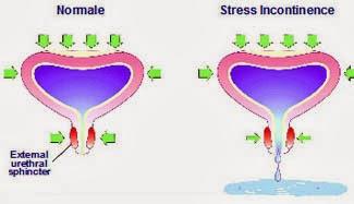 Farmaci per incontinenza urinaria dopo holep