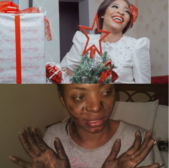Nollywood actress thanks God for saving her from a fatal fire accident