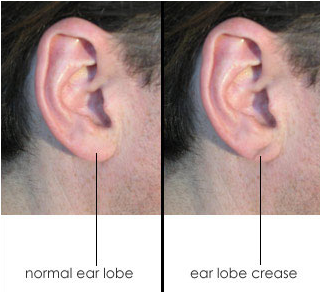 earlobe_crease