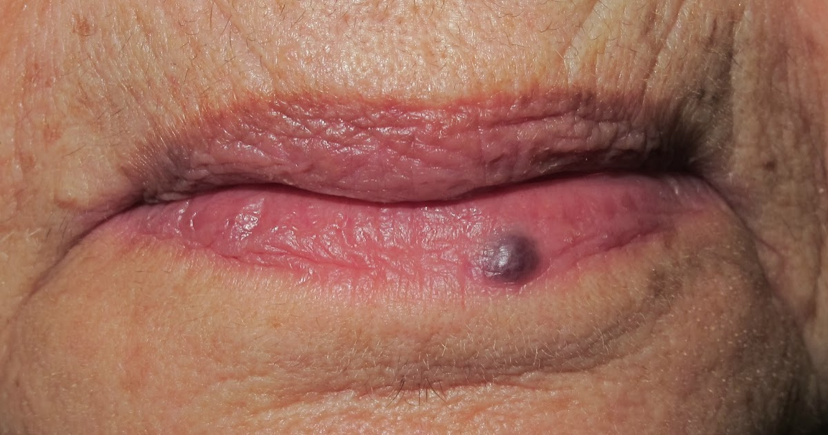 Sangre en la boca 2016 eva de dominici - 2 part 3