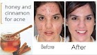 7 Home Remedies For Pimples That Works like Magic