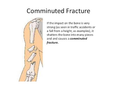 Communited fracture definition, Types of fracture,Bone injury,