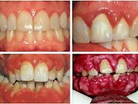 Pengobatan Terapi Lintah Mengobati Penyakit Gum/gusi