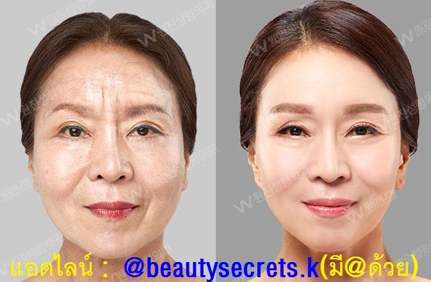 รีวิวศัลยกรรมเกาหลี เอเจนซี่BSK : ศัลยกรรมชะลอวัย (Anti-aging) ศัลยกรรมยกกระชับหน้า ศัลยกรรมกระชับหน