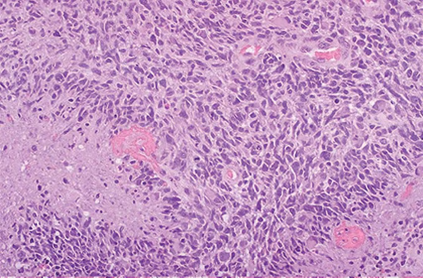 rod-shaped-blepharoplast-ependymoma