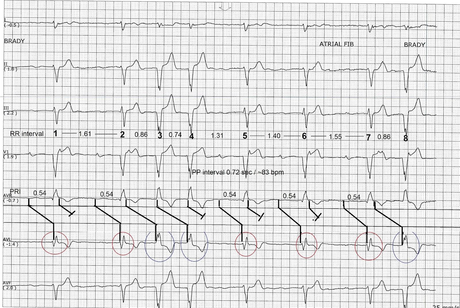 ECG Rhythms: Machine interpretation: atrial fibrillation