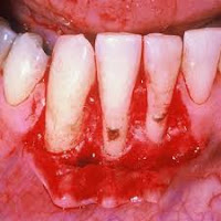 Best and Easy Ways to Prevent Gum Diseases in Adults and Children