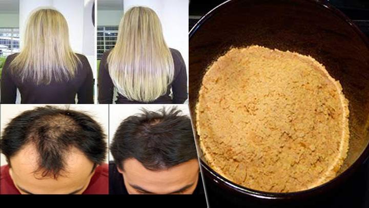 Health hair el bálsamo el spray contra la caída de los cabello