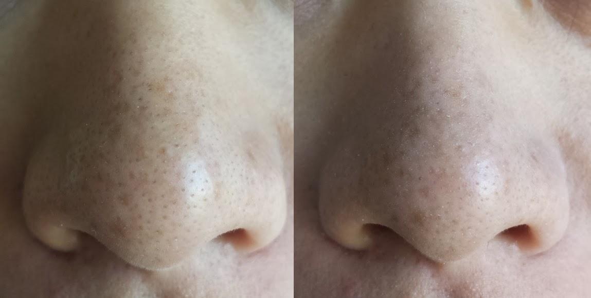 Dna Beauty Shiseido Pore Minimizing Cooling Essence Review