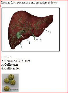 Can Big Gallstones Pass Naturally
