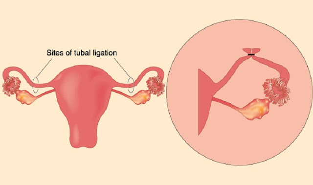 Chances-Of-Getting-Pregnant-After-Tubal-Ligation-During-C-Section