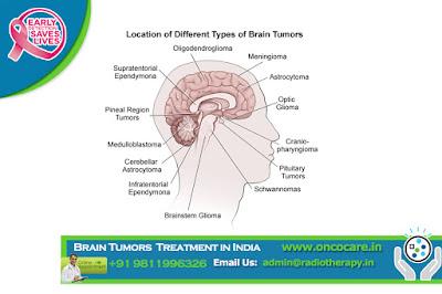 Brain Tumors Treatment