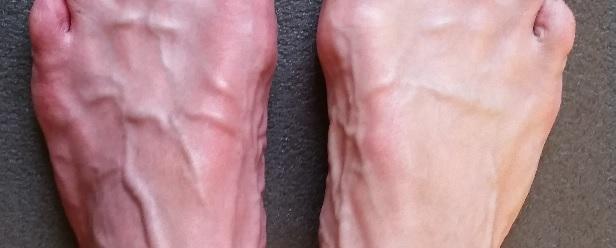 gezwollen aderen op de voeten