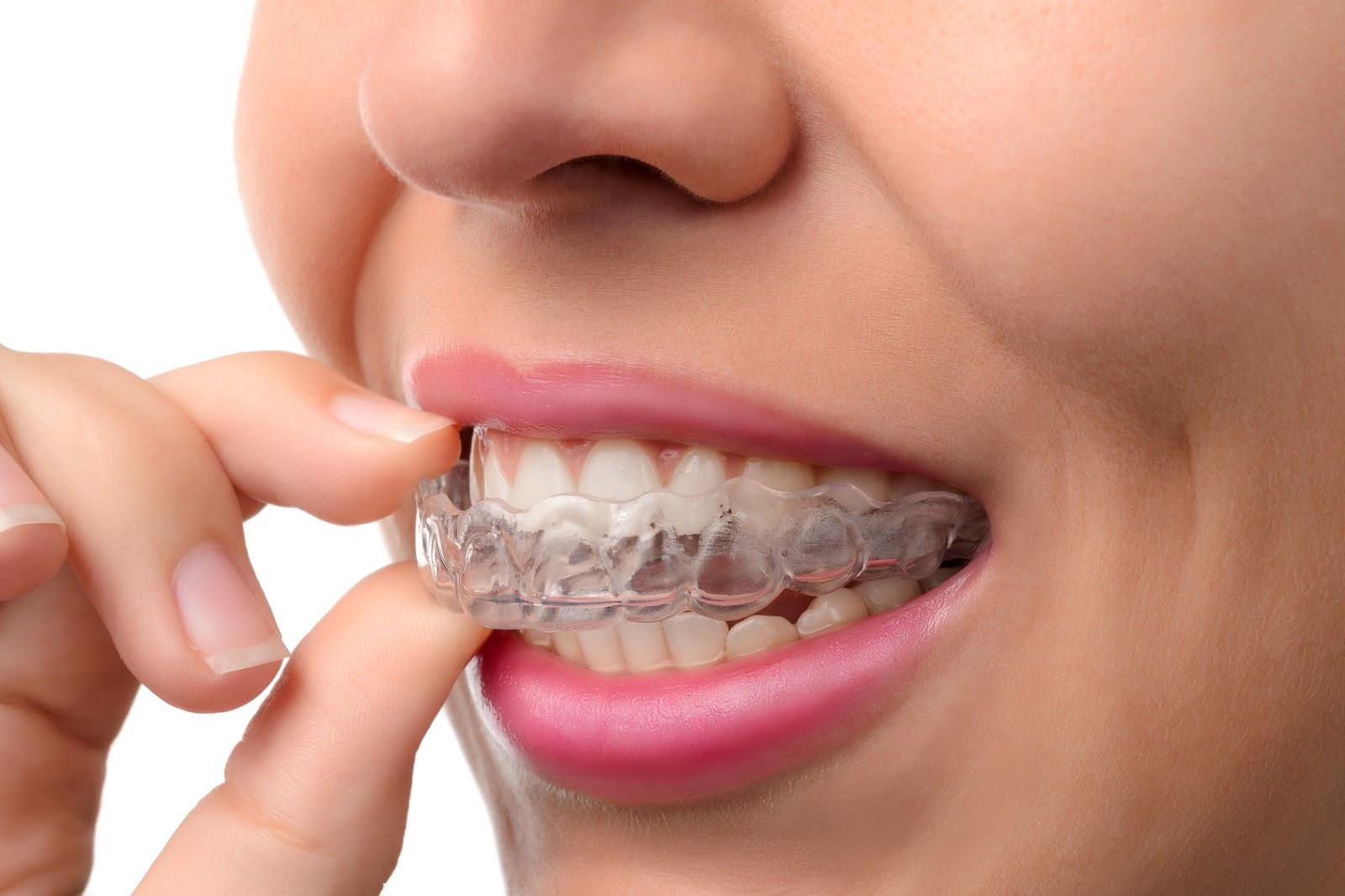 retainer ortodontyczny