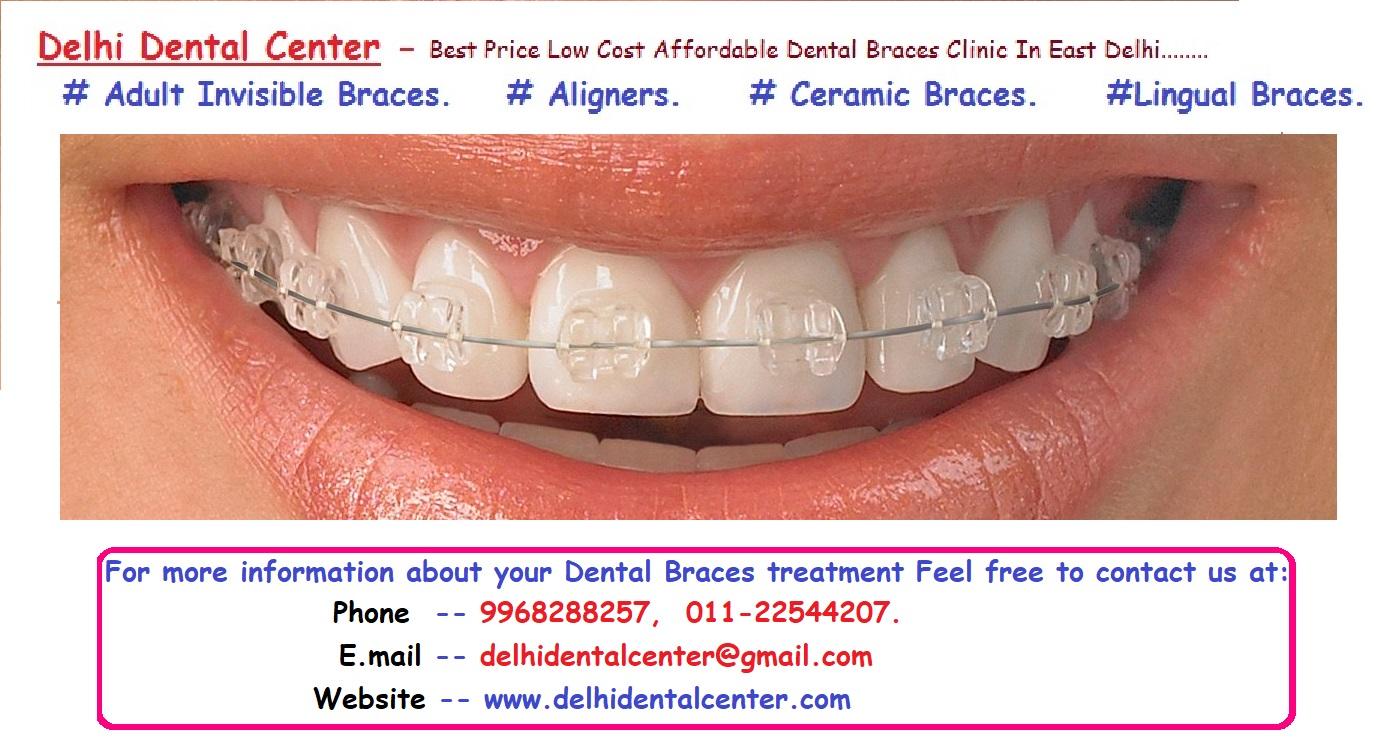 Dental Braces Delhi: braces prices, orthodontic braces