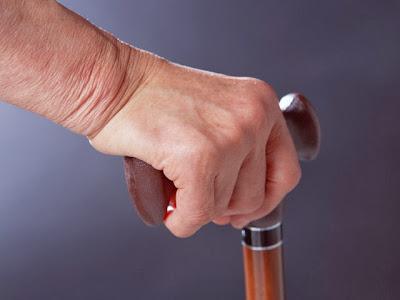 Día a día con la enfermedad de Alzheimer: definición, complicaiones y tratamientos