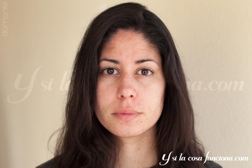 Treclinac Gel Resultados piel y control de nuevo tratamiento