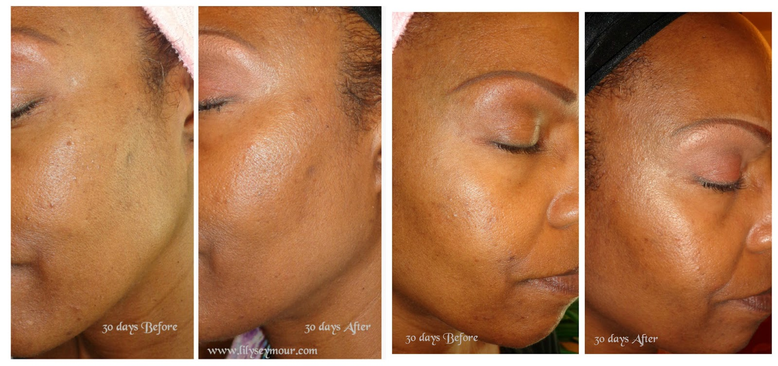 Truist Skin Care 30 Day Results