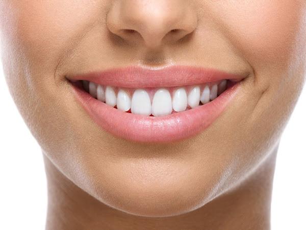 Comment avoir des dents plus blanches ?