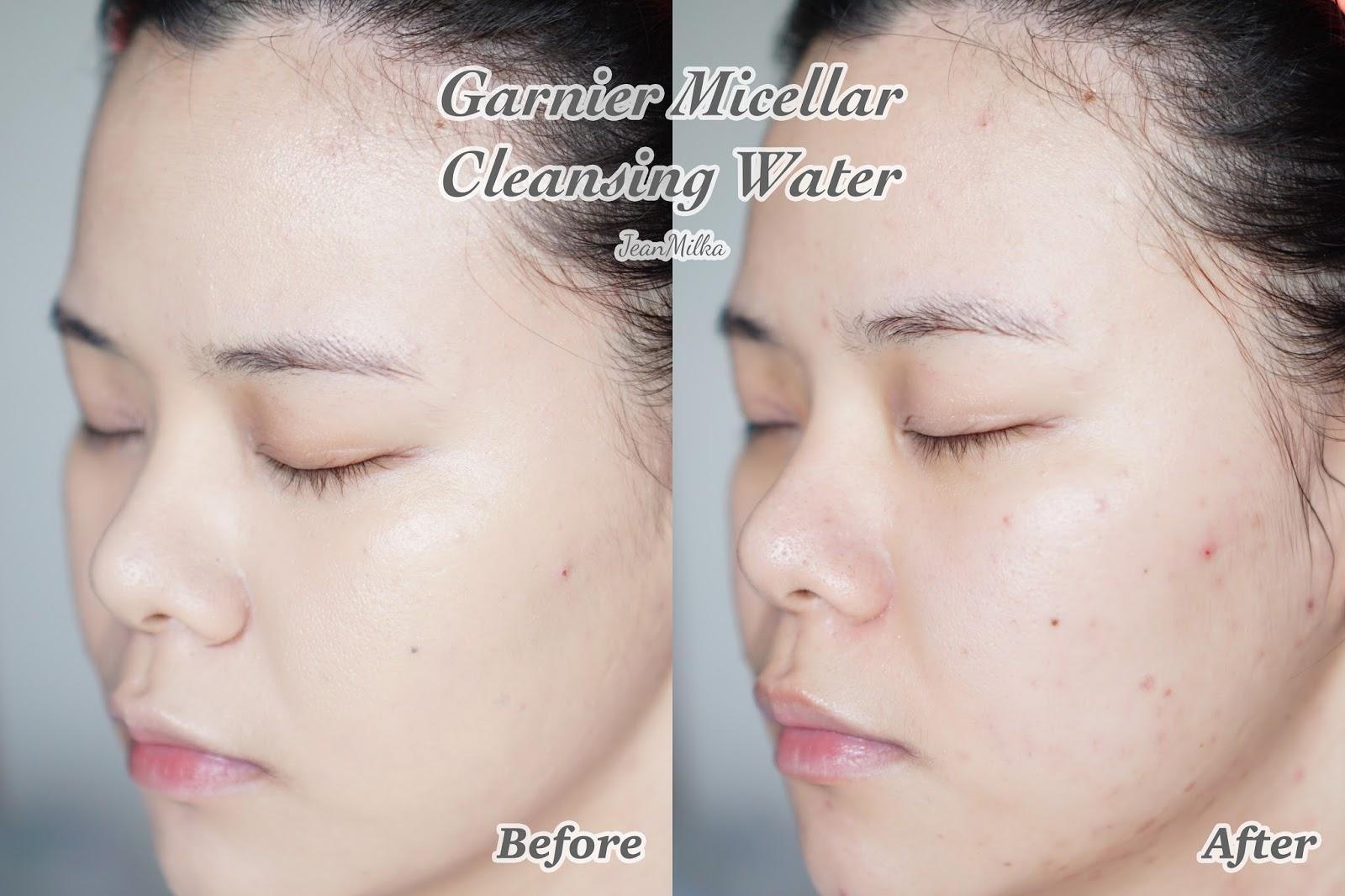 skincare, garnier, garnier sakura white, sakura white, garnier skincare, skincare indonesia, review, product review, skincare indonesia, indonesia, garnier micellar water, micellar water