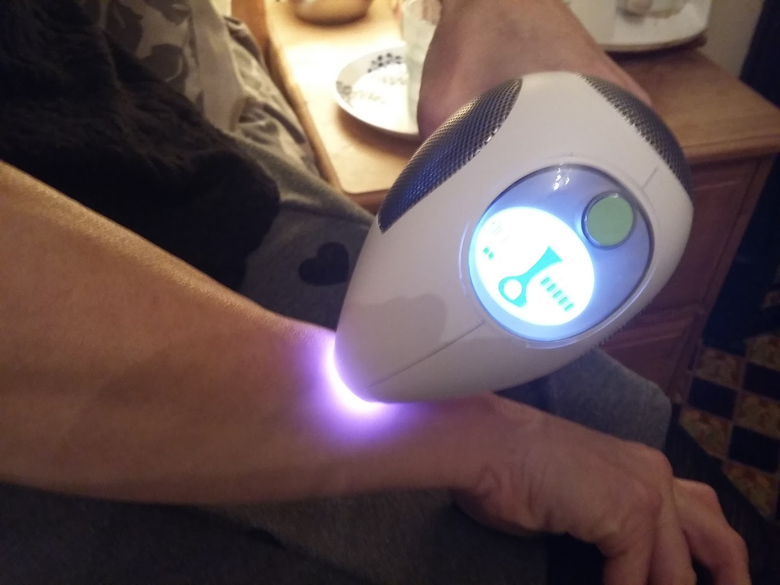 Tria Beauty Hair Removal Laser Better Than Ipl Review Part 2