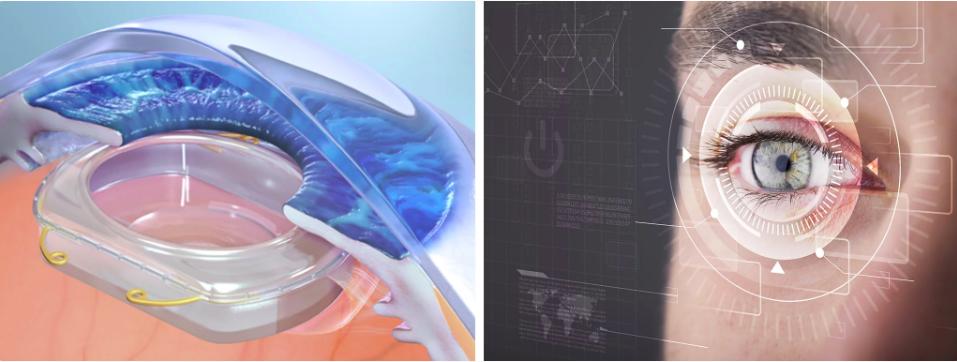 Kính áp tròng tích hợp AR/VR - tương lai của công nghệ thực tế ảo