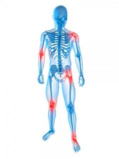 sintomas artritis reumatoide