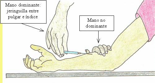 Lo Fundamental De Enfermería.: Vía Intradérmica