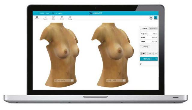 Simulación 3D aumento pecho Córdoba
