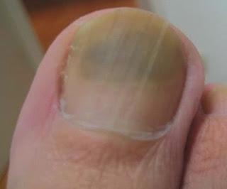 Nagelpilz-Symptome. R. D. hat seit zwei Jahren Fußnagelpilz.