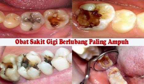 Cara Mengobati Sakit Gigi Berlubang Secara Alami Terbukti Mujarab