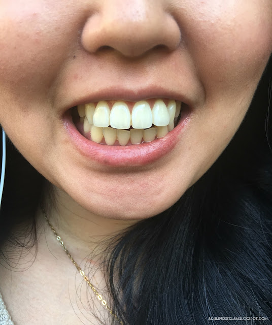 Smile Brilliant Teeth Whitening Review - Andrea Tiffany A Glimpse of Glam