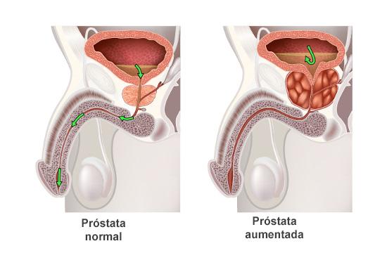 fármaco descongestionante de próstata