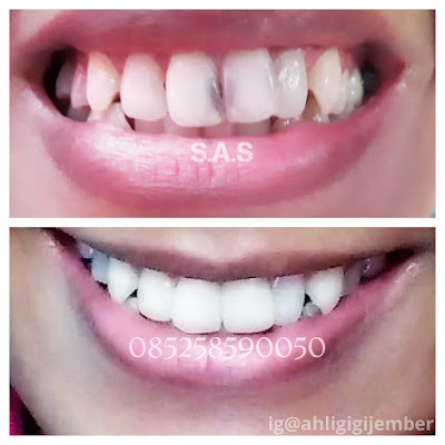 Foto hasil penambalan perbaikan gigi depan keropoas hitam berlubang