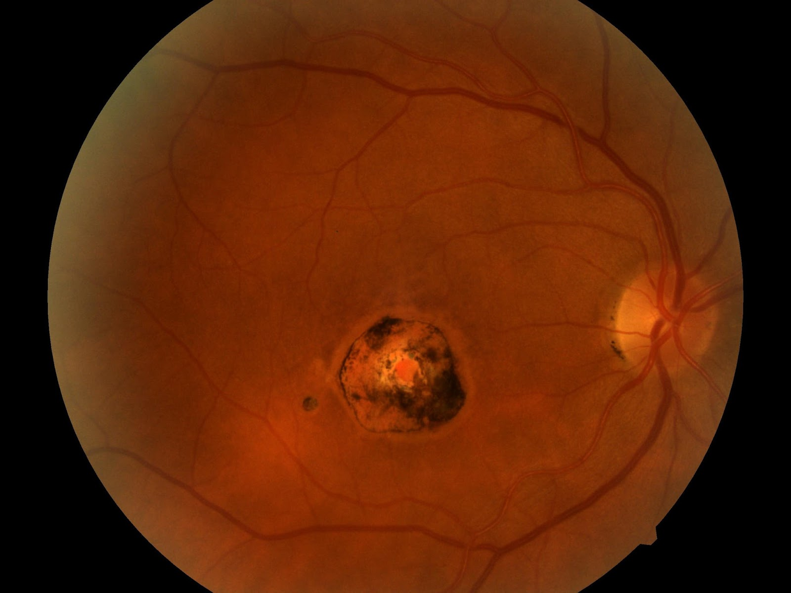Below Is A Chorioretinal Scar In The Macula Of The Right Eye. Differential  Diagnosis Includes Presumed Ocular Histoplasmosis Syndrome (POHS) And ...  Presumed Ocular Histoplasmosis