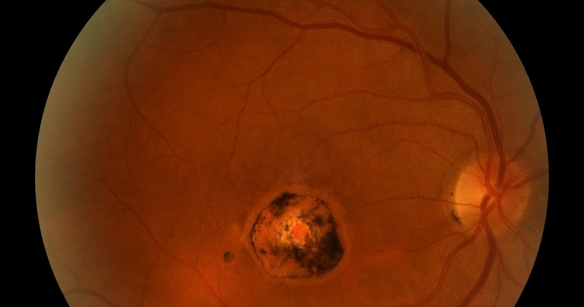 Sonoran Desert Eye Center CHORIORETINAL SCAR - Presumed Ocular Histoplasmosis