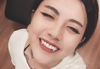 Có mấy cách trồng răng nanh?