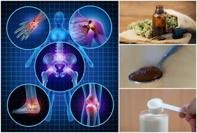 14 Potent Natural Remedies For Arthritis Backed Up By Science