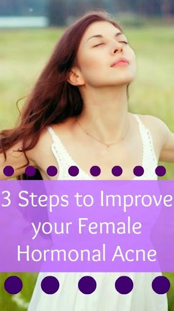 6 Steps to Stop your Female Hormonal Acne  Skin Care