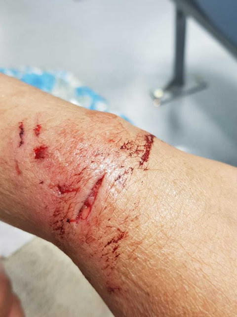 Woman speaks out after terrifying dog attack ordeal in Barkerend, Bradford