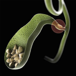 Prevenção do Câncer de Vesícula Biliar