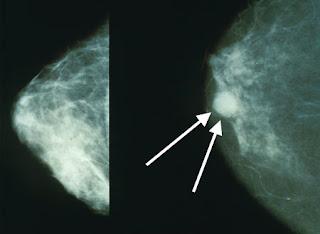 Secara umum penyakit kanker payudara bukanlah sebuah penyakit gres di dengar di indera pendengaran o Ciri kanker payudara